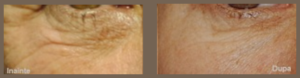 Microneedling medical exemplu